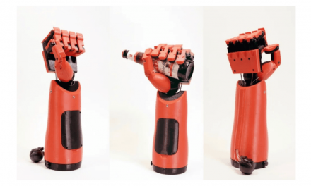 How 3D Printed Prosthesis and Robotic Limbs Are The Future